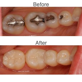 Amalgam Fillings vs.Composite Fillings before and after