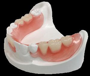 sunflex-partials-lightweight-dentures