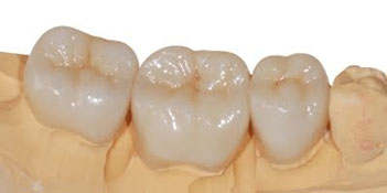 Full Zirconia Crowns